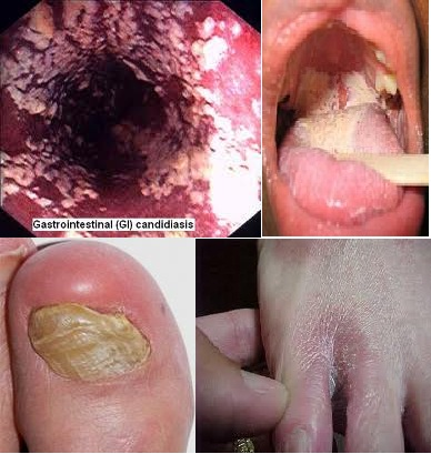 Vindeca Candidoza sau Sindromul Antibioticelor !